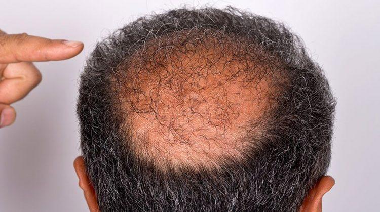 Alopecia Androgenetica Femminile - My-personaltrainer.it